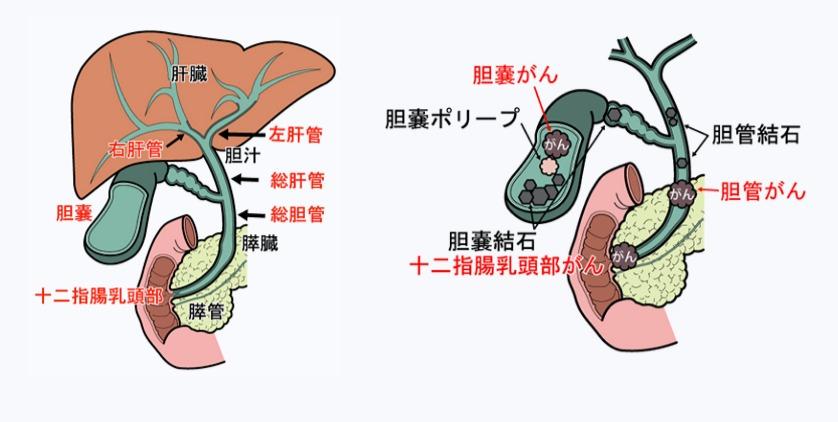 ガイドライン 胆嚢 ポリープ